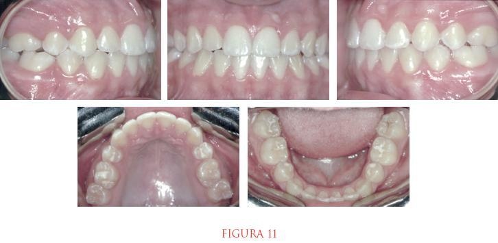 figura 11 5 bocas