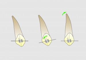 Fig. 11 A. Para generar una posición mas vertical del diente.