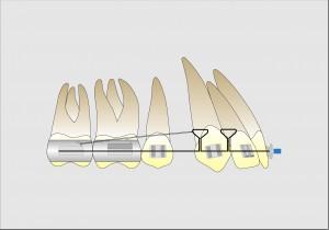 Fig. 12 B.Mecánica para la retrusión con anclaje máximo.