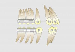 Fig. 13 A. Posicionamiento de la banda del 1º molar en casos de 4 extracciones. Esa posición permite una óptima finalización en clase I molar.