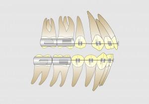 Fig. 14 A. Posicionamiento de la banda del 1º molar en casos de 2 extracciones. Esa posición facilita una correcta oclusión molar en clase II al finalizar el tratamiento.