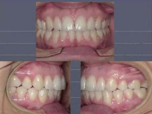 Figura 13. Fotos intrabucales fi nales cuando se retira la aparatología. Se observa una buena relación anterior.