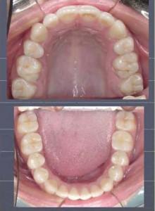Figura 14. Fotos intrabucales donde se aprecia el alineamiento de ambas arcadas.