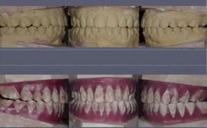 Figura 15. Modelos articulados del caso terminado y el set up de este modelo para la construcción del posicionador elástico. La paciente utilizará este elemento de contención elástica por un periodo de seis meses.