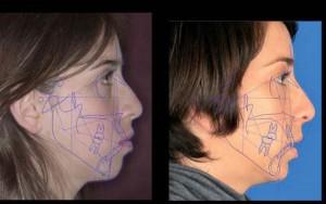 Figura 16. Comparativa de los trazados antes y después del tratamiento de ortodoncia.