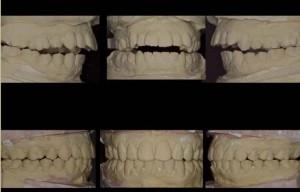 Figura 19. Comparativa de modelos articulados antes y después del tratamiento.