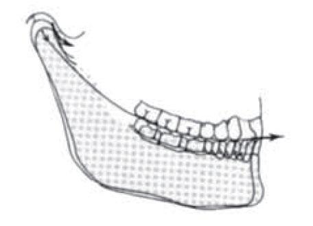 Nótese la importancia de una curva de Spee adecuada para que la guía anterior y condilar desocluyan a los dientes posteriores.