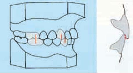 Relación de clase I dentaria con buena relación de overjet.
