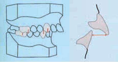 Relación de clase II dentaria con overjet aumentado. El borde incisal inferior no encuentra el contacto con la superficie palatina del incisivo superior.