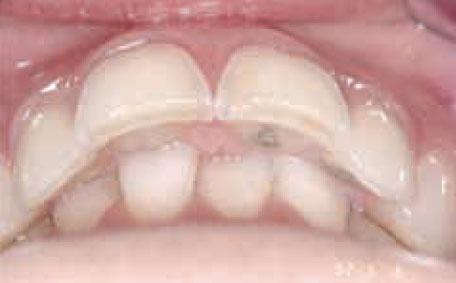 Los incisivos inferiores detuvieron su proceso de erupción cuando encontraron el contacto de la mucosa palatina.
